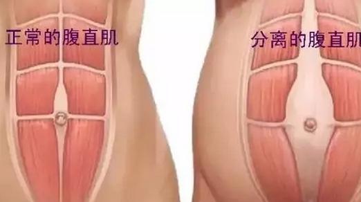 为什么产后肚子还是收不回来 什么是产后腹直肌分离